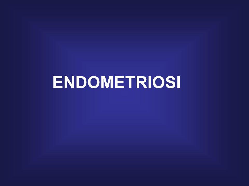 RISULTATI Diametro medio delle cisti recidivanti p < 0,01 vs no terapia COC ED ENDOMETRIOSI Crescita delle cisti in 6 mesi p < 0,01 vs no terapia ___