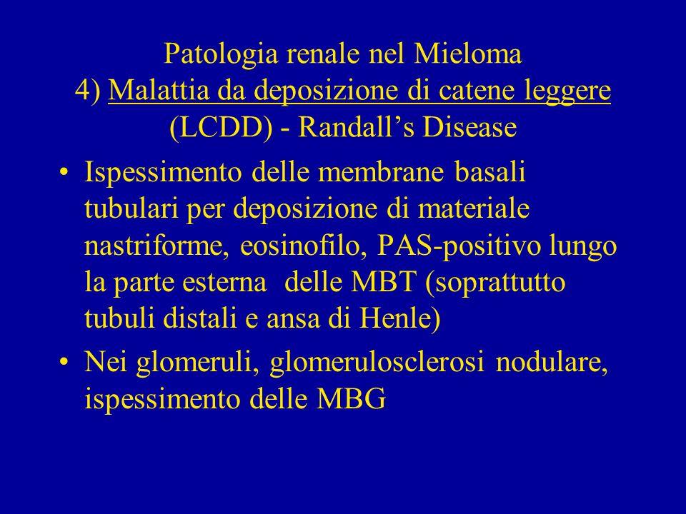 Patologia renale nel Mieloma 4) Malattia da deposizione di catene leggere (LCDD) - Randalls Disease Ispessimento delle membrane basali tubulari per de
