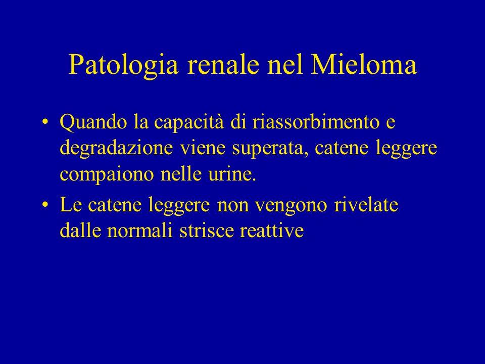 Patologia renale nel Mieloma Quando la capacità di riassorbimento e degradazione viene superata, catene leggere compaiono nelle urine. Le catene legge