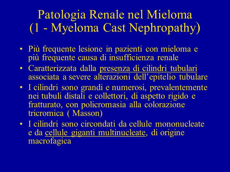 Patologia Renale nel Mieloma (1 - Myeloma Cast Nephropathy ) Più frequente lesione in pazienti con mieloma e più frequente causa di insufficienza rena
