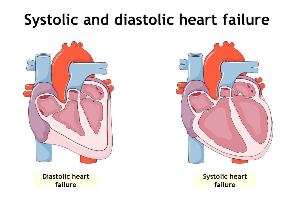 Systolic and diastolic heart failure Diastolic heart failure Systolic heart failure
