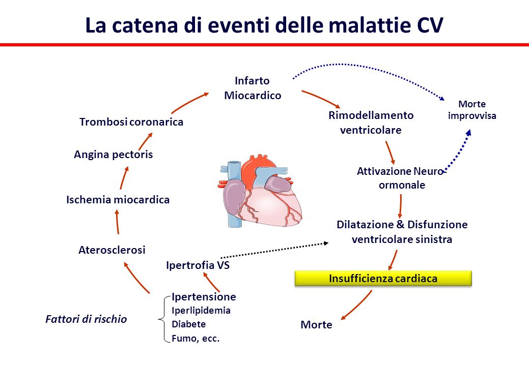 Systolic and diastolic heart failure Diastolic heart failure Systolic heart failure