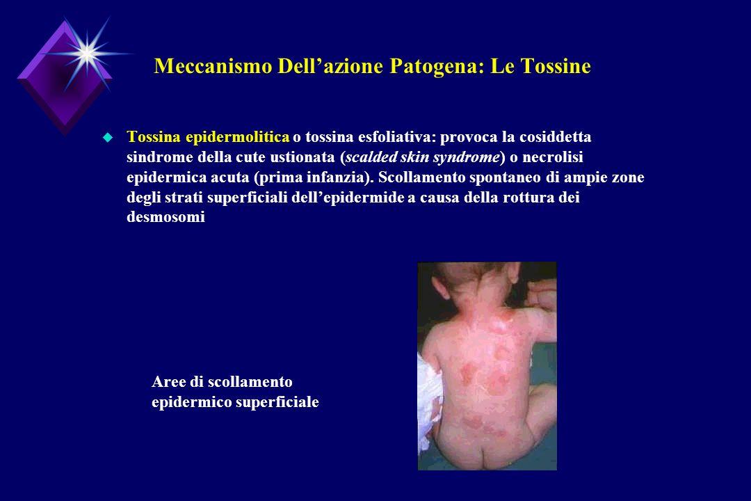 Meccanismo Dellazione Patogena: Le Tossine u Tossina epidermolitica o tossina esfoliativa: provoca la cosiddetta sindrome della cute ustionata (scalde