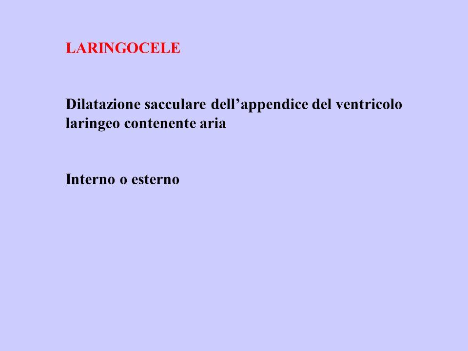 LARINGOCELE Dilatazione sacculare dellappendice del ventricolo laringeo contenente aria Interno o esterno