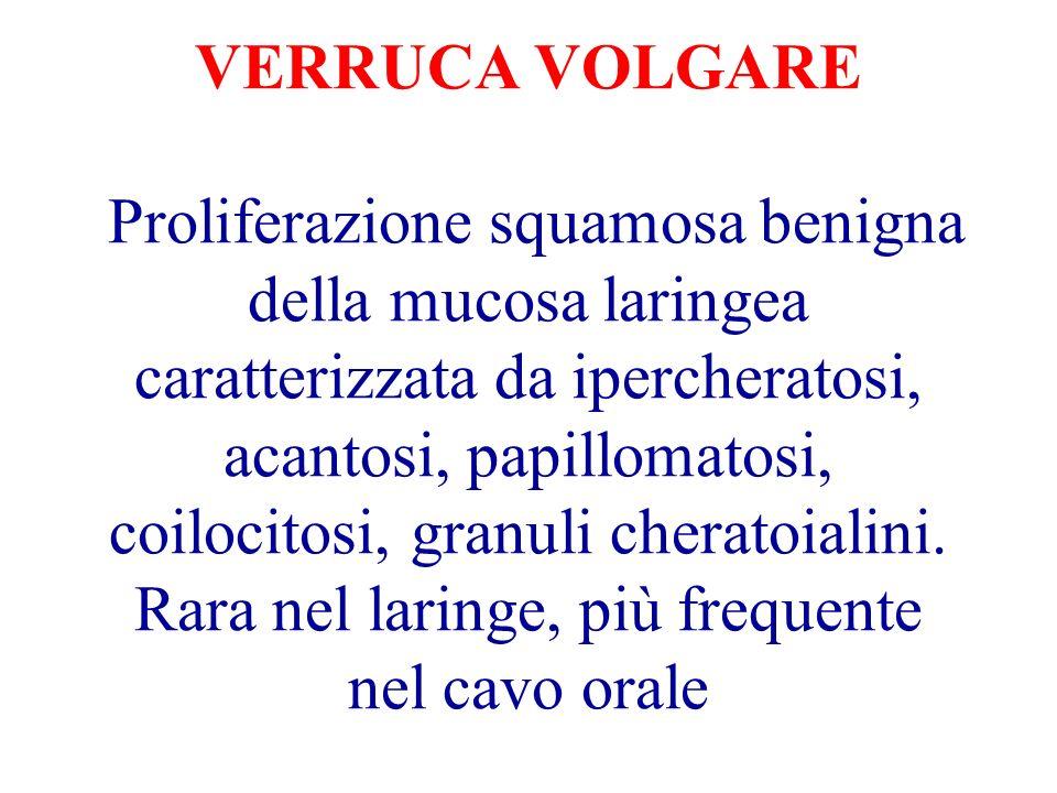 VERRUCA VOLGARE Proliferazione squamosa benigna della mucosa laringea caratterizzata da ipercheratosi, acantosi, papillomatosi, coilocitosi, granuli cheratoialini.