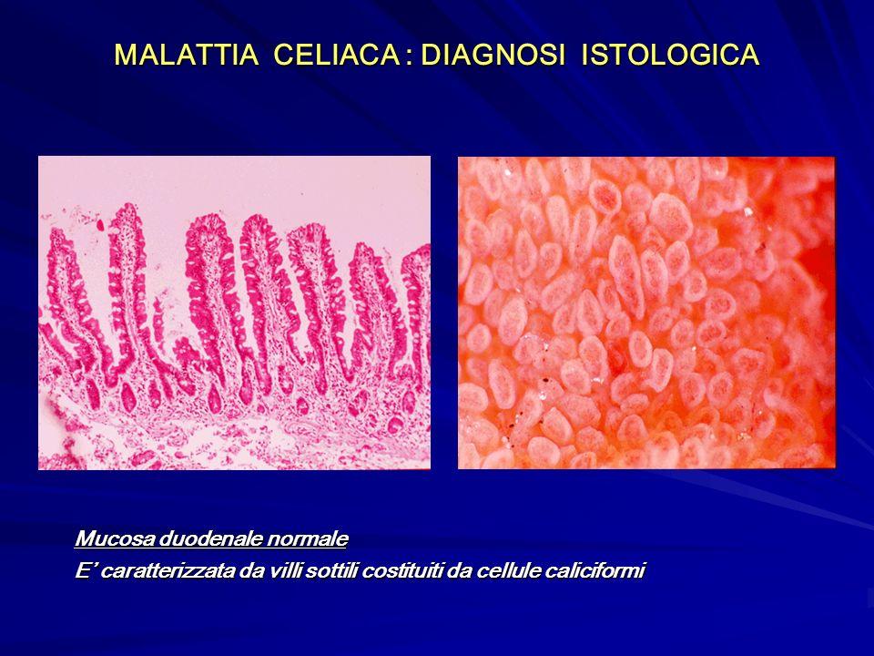 MALATTIA CELIACA : DIAGNOSI ISTOLOGICA Mucosa duodenale normale E caratterizzata da villi sottili costituiti da cellule caliciformi