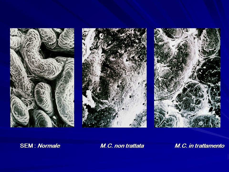 SEM : Normale M.C. non trattata M.C. in trattamento SEM : Normale M.C. non trattata M.C. in trattamento