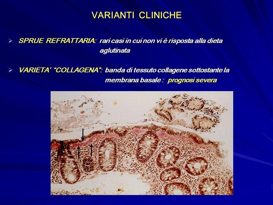VARIANTI CLINICHE SPRUE REFRATTARIA: rari casi in cui non vi è risposta alla dieta SPRUE REFRATTARIA: rari casi in cui non vi è risposta alla dieta ag