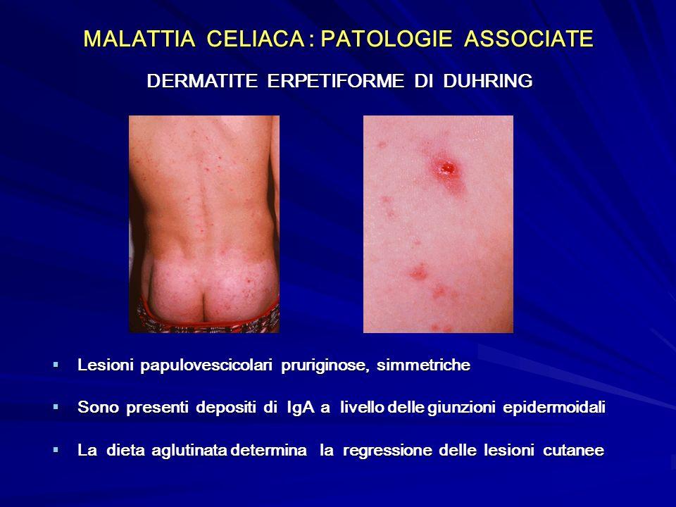 MALATTIA CELIACA : PATOLOGIE ASSOCIATE DERMATITE ERPETIFORME DI DUHRING Lesioni papulovescicolari pruriginose, simmetriche Lesioni papulovescicolari p