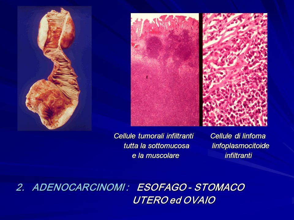 Cellule tumorali infiltranti Cellule di linfoma Cellule tumorali infiltranti Cellule di linfoma tutta la sottomucosa linfoplasmocitoide tutta la sotto