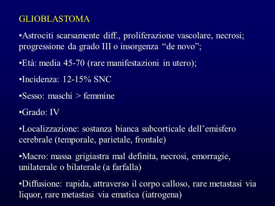 GLIOBLASTOMA Astrociti scarsamente diff., proliferazione vascolare, necrosi; progressione da grado III o insorgenza de novo; Età: media 45-70 (rare ma