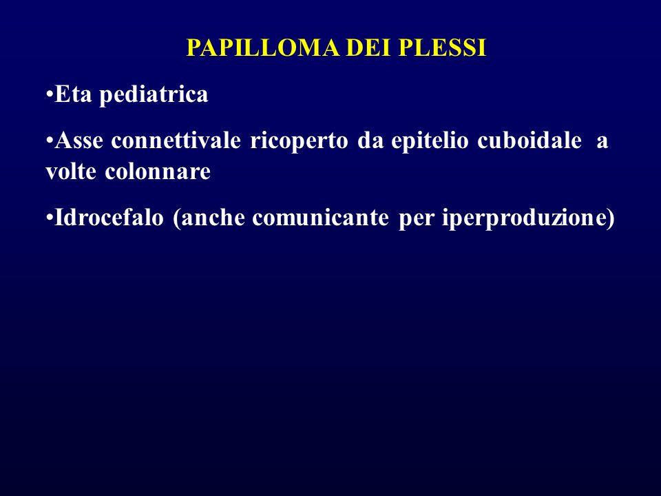 PAPILLOMA DEI PLESSI Eta pediatrica Asse connettivale ricoperto da epitelio cuboidale a volte colonnare Idrocefalo (anche comunicante per iperproduzio