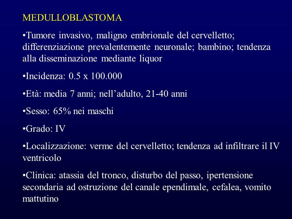 MEDULLOBLASTOMA Tumore invasivo, maligno embrionale del cervelletto; differenziazione prevalentemente neuronale; bambino; tendenza alla disseminazione