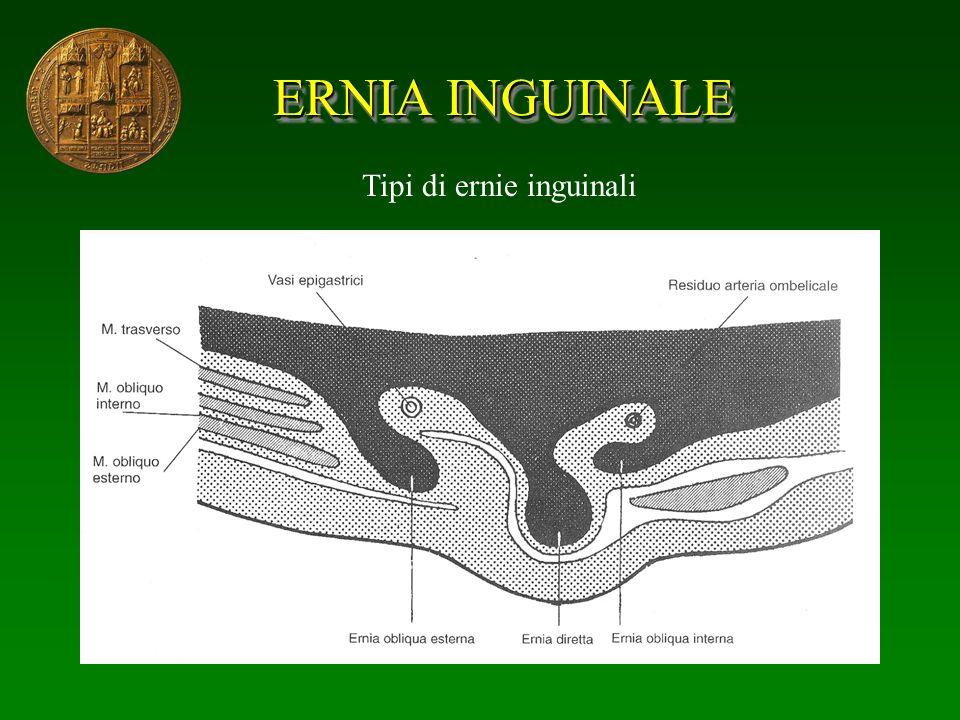 ERNIA INGUINALE Tipi di ernie inguinali