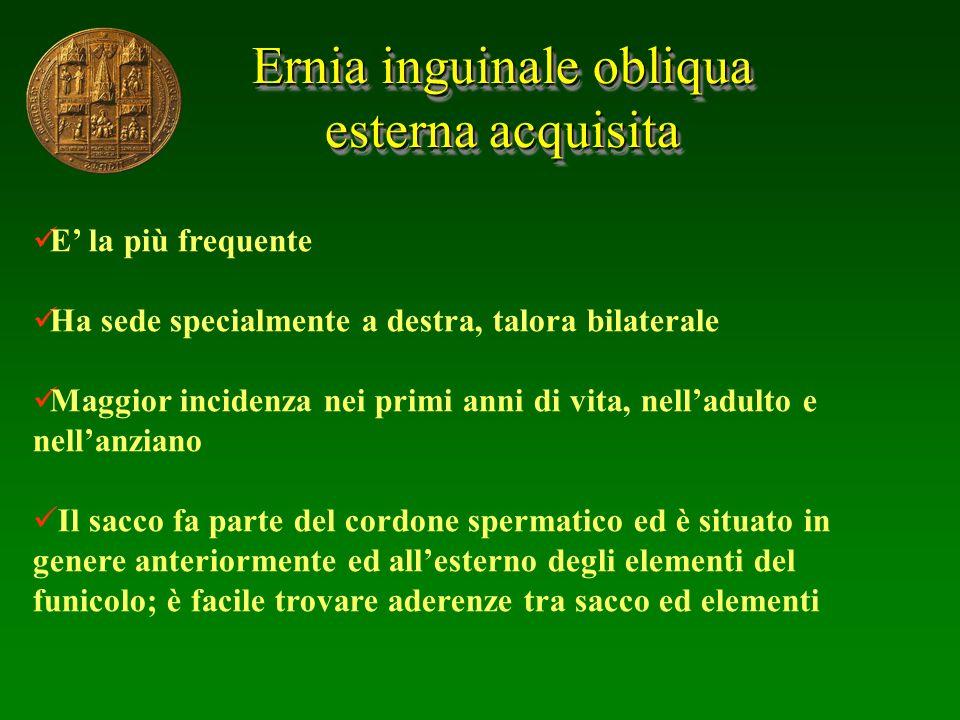 Ernia inguinale obliqua esterna acquisita Ernia inguinale obliqua esterna acquisita E la più frequente Ha sede specialmente a destra, talora bilateral