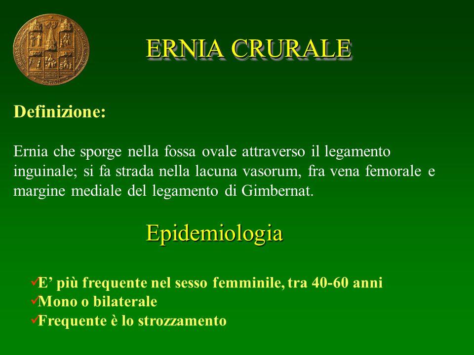 ERNIA CRURALE Definizione: Ernia che sporge nella fossa ovale attraverso il legamento inguinale; si fa strada nella lacuna vasorum, fra vena femorale