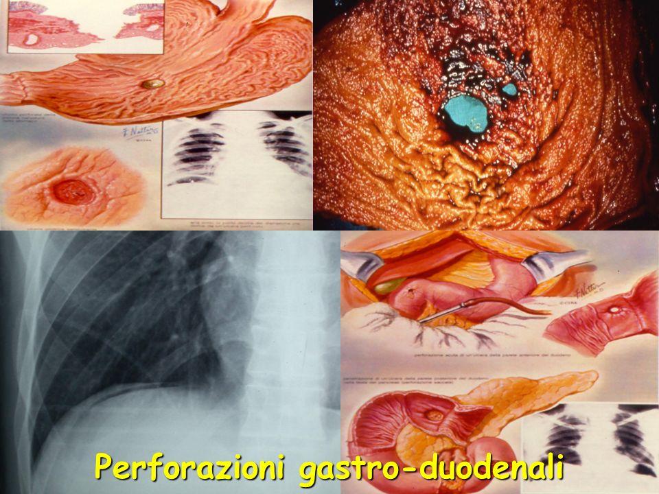 Perforazioni gastro-duodenali