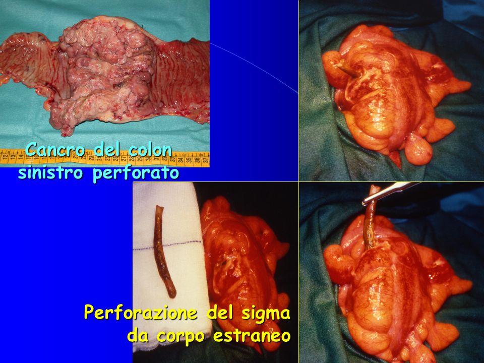 Perforazione del sigma da corpo estraneo Cancro del colon sinistro perforato