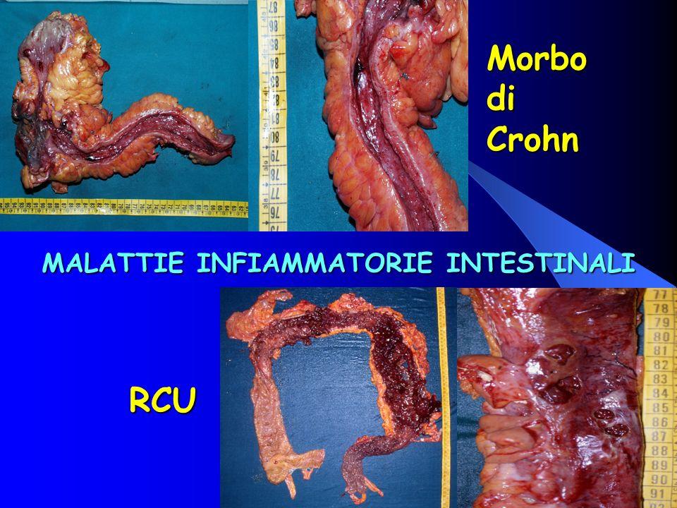 MALATTIE INFIAMMATORIE INTESTINALI RCU Morbo di Crohn
