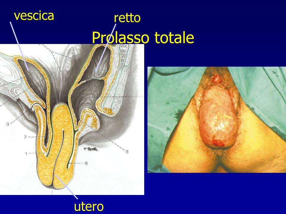 Prolasso totale vescica retto utero
