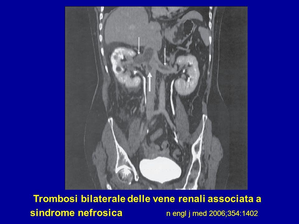 Trombosi bilaterale delle vene renali associata a sindrome nefrosica n engl j med 2006;354:1402