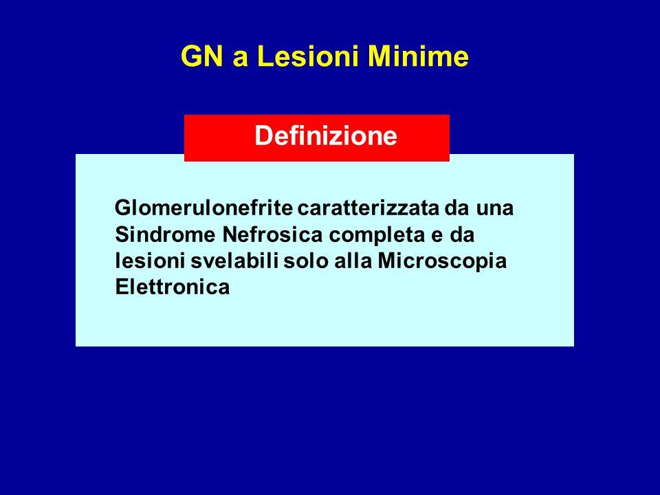 GN a Lesioni Minime Glomerulonefrite caratterizzata da una Sindrome Nefrosica completa e da lesioni svelabili solo alla Microscopia Elettronica Defini