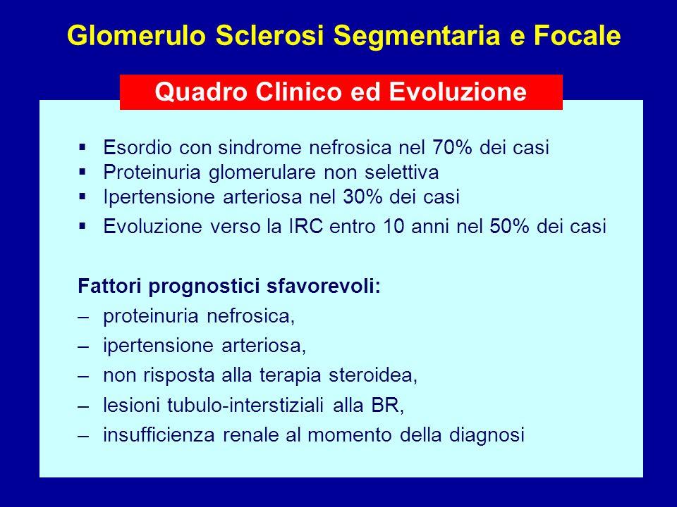Esordio con sindrome nefrosica nel 70% dei casi Proteinuria glomerulare non selettiva Ipertensione arteriosa nel 30% dei casi Evoluzione verso la IRC
