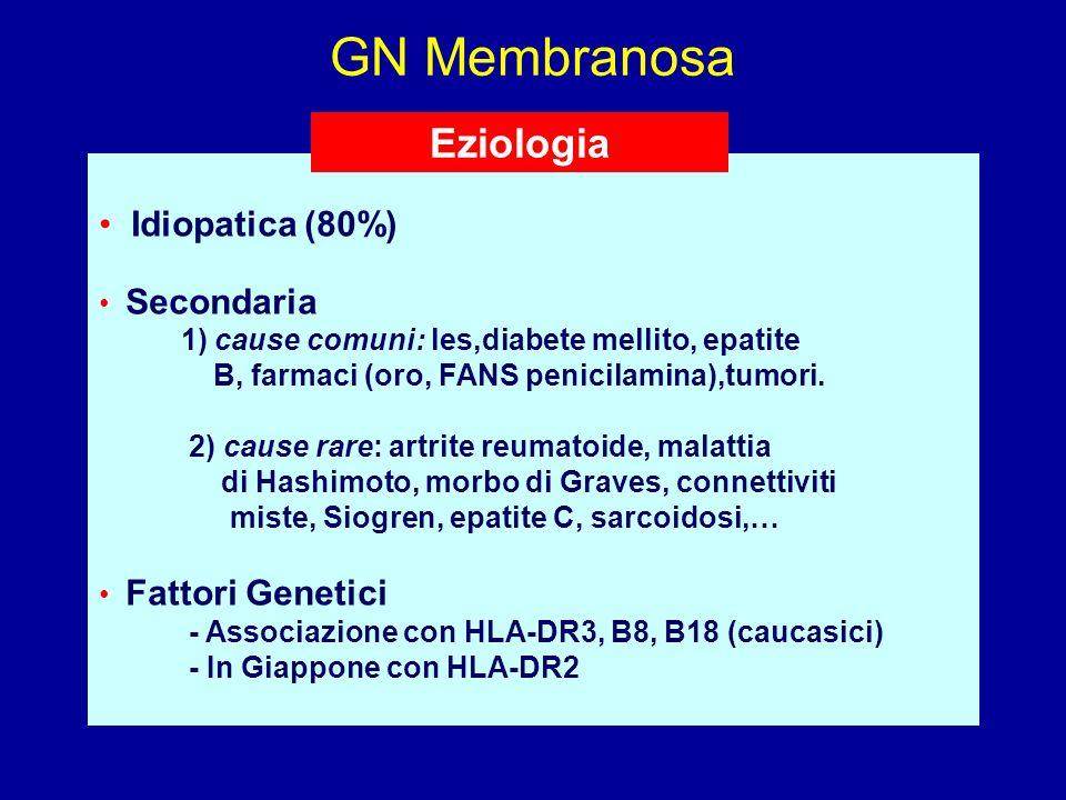 GN Membranosa Idiopatica (80%) Secondaria 1) cause comuni: les,diabete mellito, epatite B, farmaci (oro, FANS penicilamina),tumori. 2) cause rare: art
