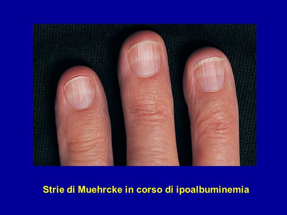 GSSF Primitiva (Idiopatica) Sclerosi segmentaria interessante parte della matassa capillare PAS 350x
