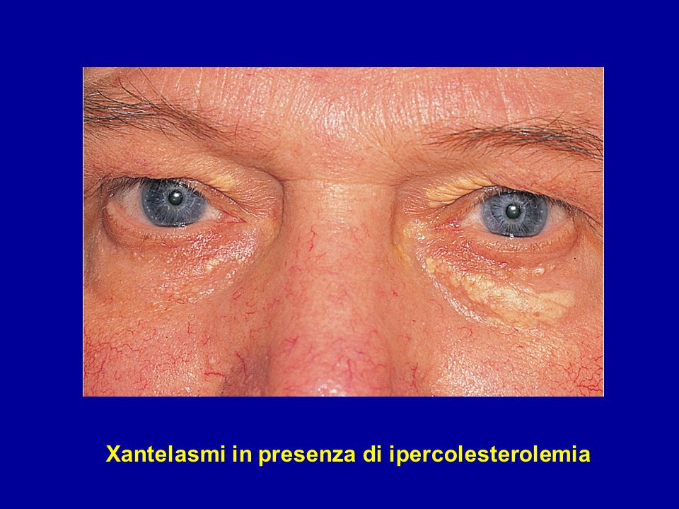 Xantelasmi in presenza di ipercolesterolemia
