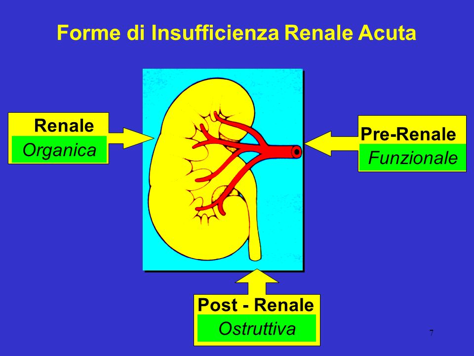8 Cause di Insufficienza Renale Acuta Pre-renale PA Volume circolante (70-80%) Post-renale (10-20%) Ostruzione delle vie escretrici Renale (5-10%) Lesioni organiche a livello parenchimale - Glomeruli - Vasi - Tubuli - Interstizio