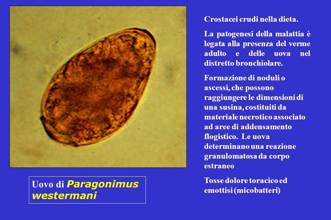 Uovo di Paragonimus westermani Crostacei crudi nella dieta. La patogenesi della malattia è legata alla presenza del verme adulto e delle uova nel dist