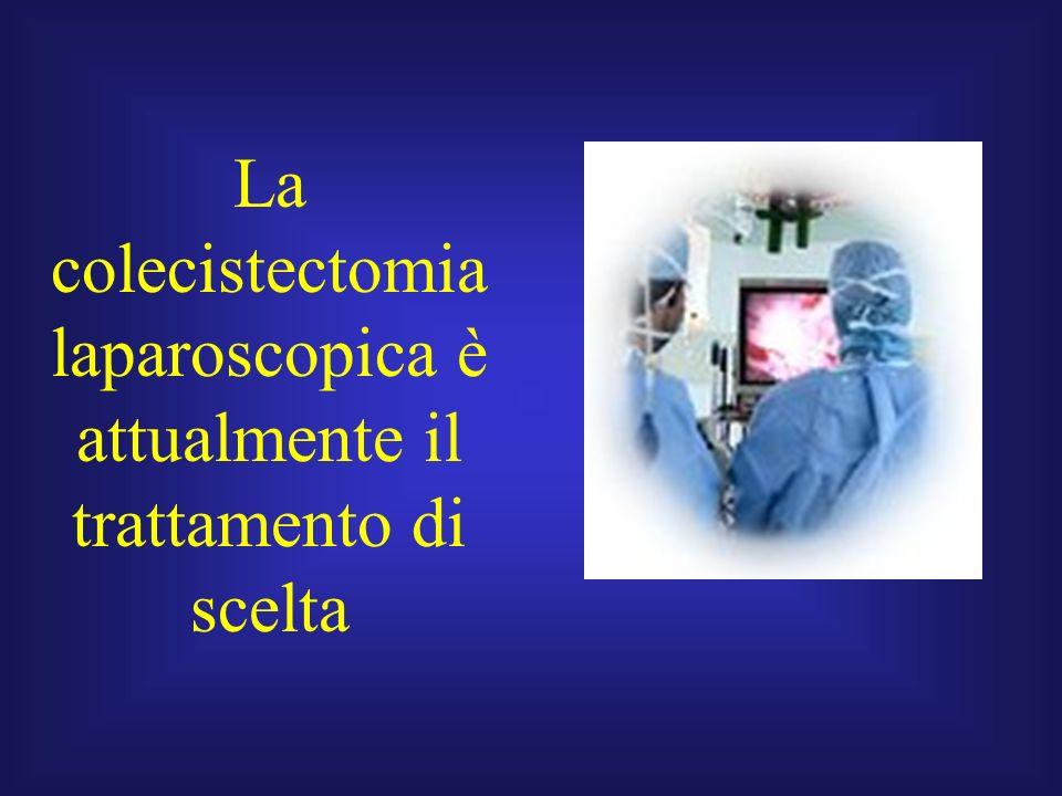 La colecistectomia laparoscopica è attualmente il trattamento di scelta