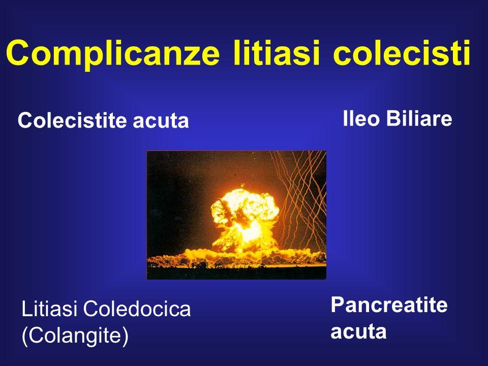 Complicanze litiasi colecisti Colecistite acuta Litiasi Coledocica (Colangite) Ileo Biliare Pancreatite acuta