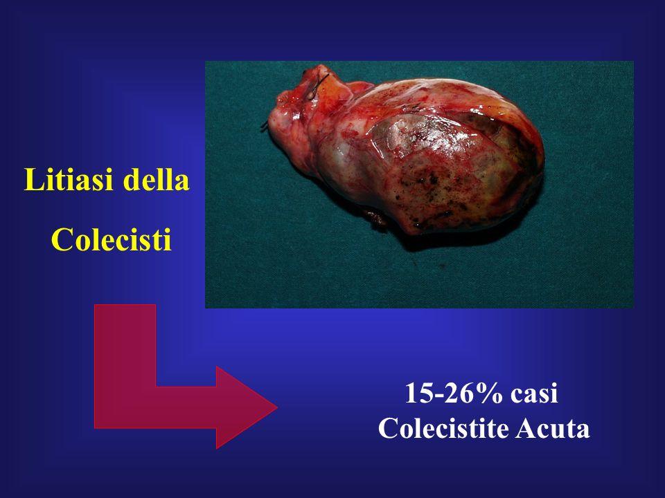 Litiasi della Colecisti 15-26% casi Colecistite Acuta