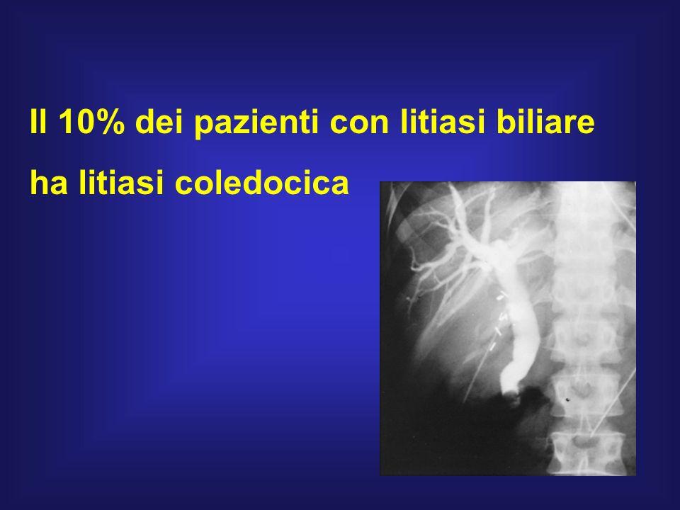 Il 10% dei pazienti con litiasi biliare ha litiasi coledocica