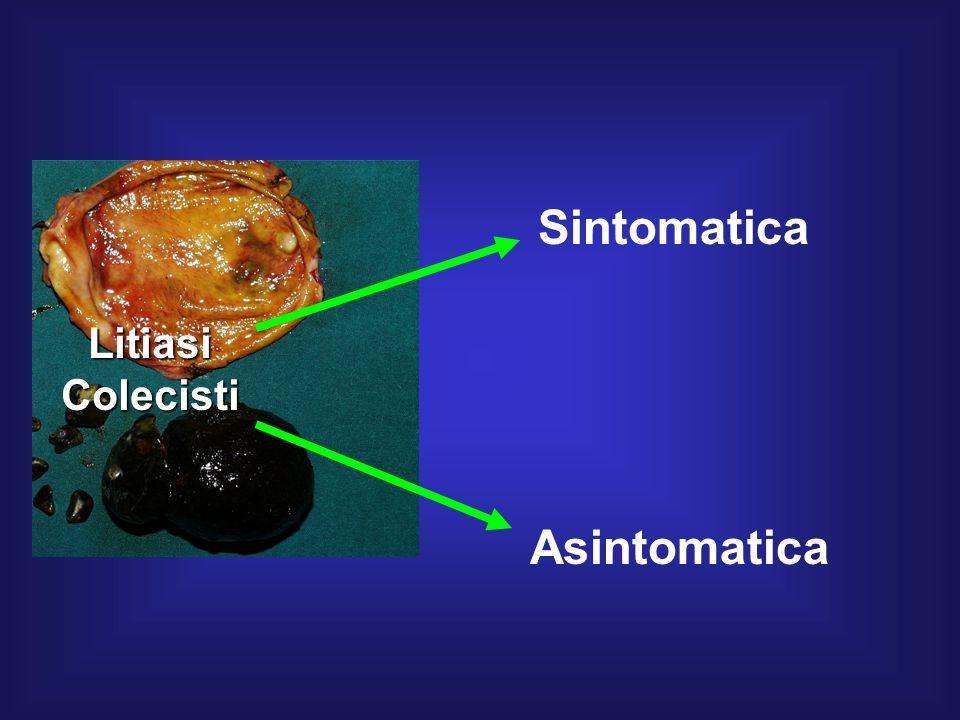 Sintomatica Asintomatica LitiasiColecisti