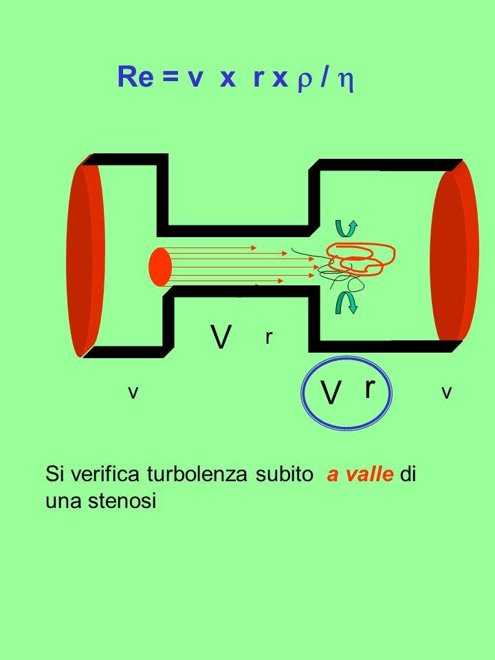 Re = v x r x / V r V r vv Si verifica turbolenza subito a valle di una stenosi