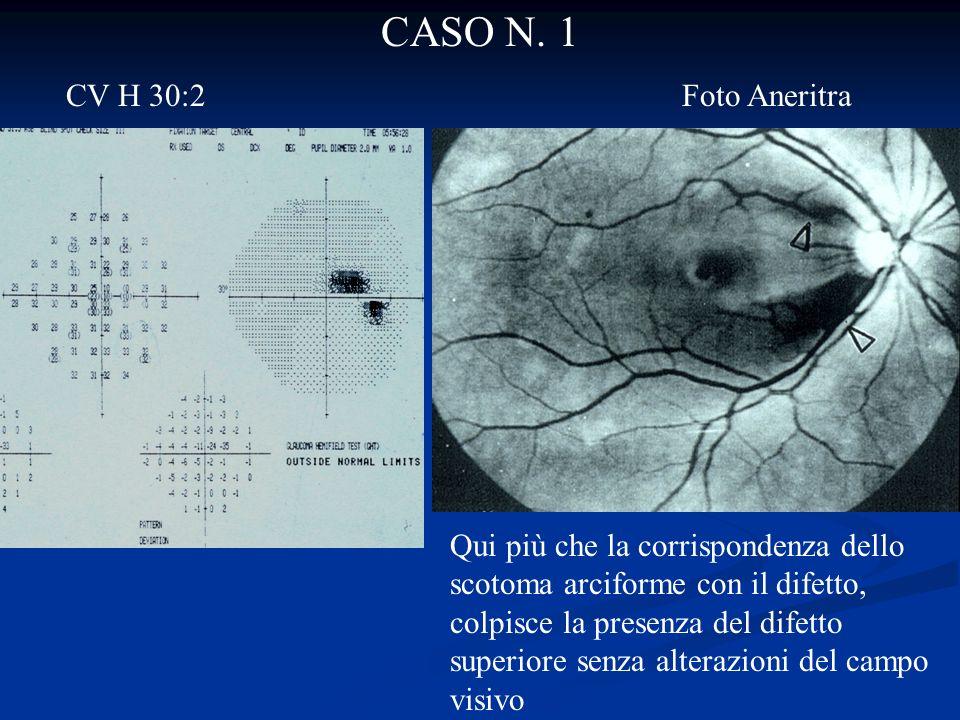 CASO N. 1 CV H 30:2 Foto Aneritra Qui più che la corrispondenza dello scotoma arciforme con il difetto, colpisce la presenza del difetto superiore sen