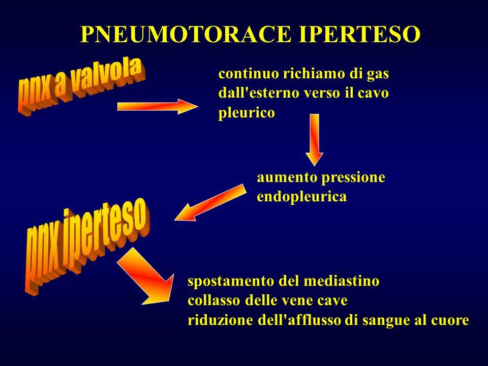 PNEUMOTORACE IPERTESO continuo richiamo di gas dall esterno verso il cavo pleurico spostamento del mediastino collasso delle vene cave riduzione dell afflusso di sangue al cuore aumento pressione endopleurica