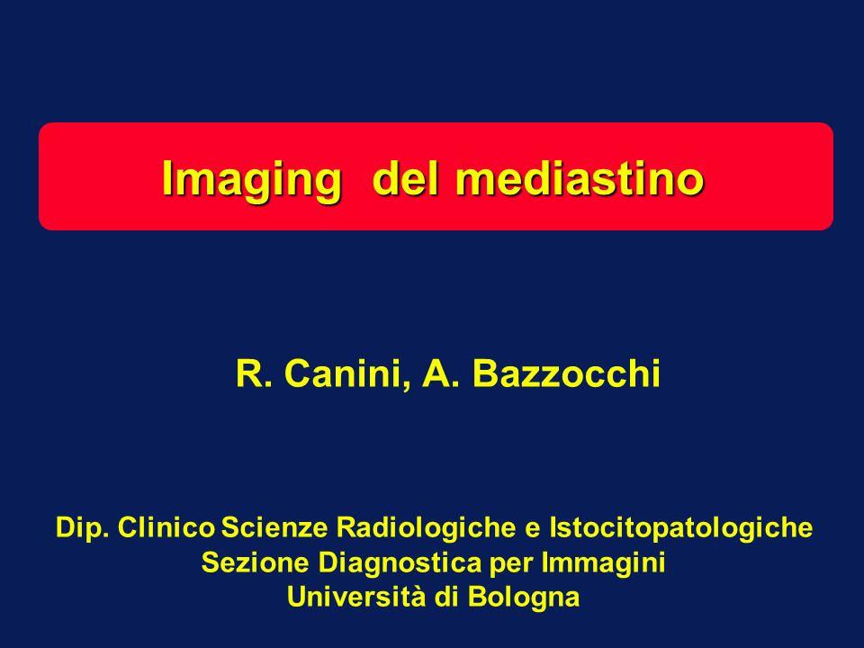 RISONANZA MAGNETICA n La RM è anchessa metodica in grado di fornire una precisa definizione anatomica del mediastino, paragonabile a quella ottenibile con la TC.