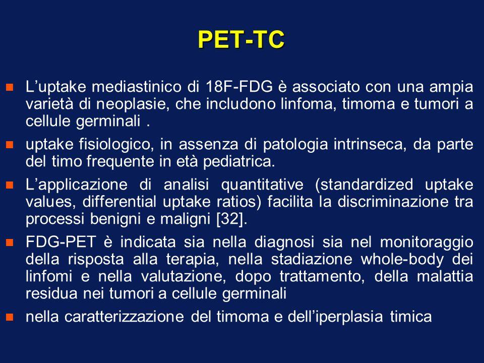 PET-TC n Luptake mediastinico di 18F-FDG è associato con una ampia varietà di neoplasie, che includono linfoma, timoma e tumori a cellule germinali. n
