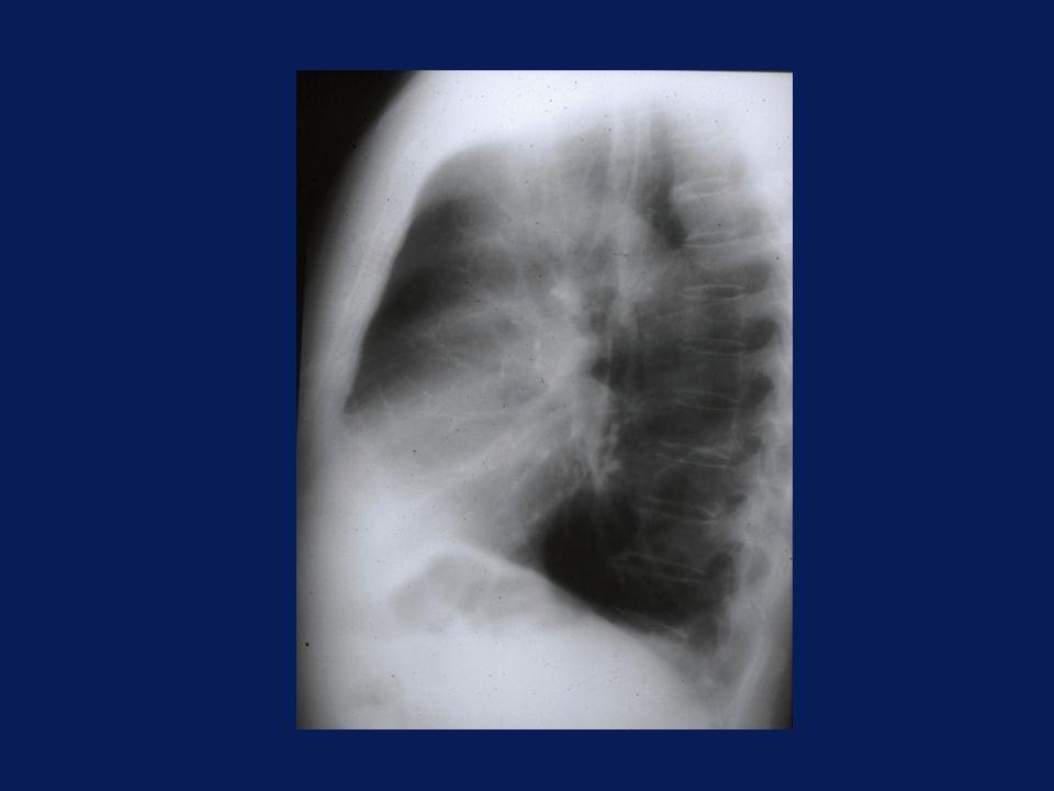 PRINCIPALI LINEE MEDIASTINICHE n Para-arteriosa sn ( art.