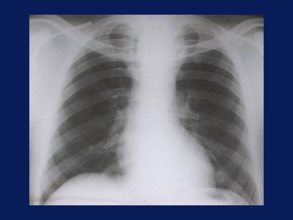 SPAZI MEDIASTINICI n ANTERIORE: sterno – parete anteriore dei grossi vasi e del cuore n MEDIO: SMA – margine posteriore della trachea, bronchi principali e cuore n POSTERIORE: SMM – rachide dorsale