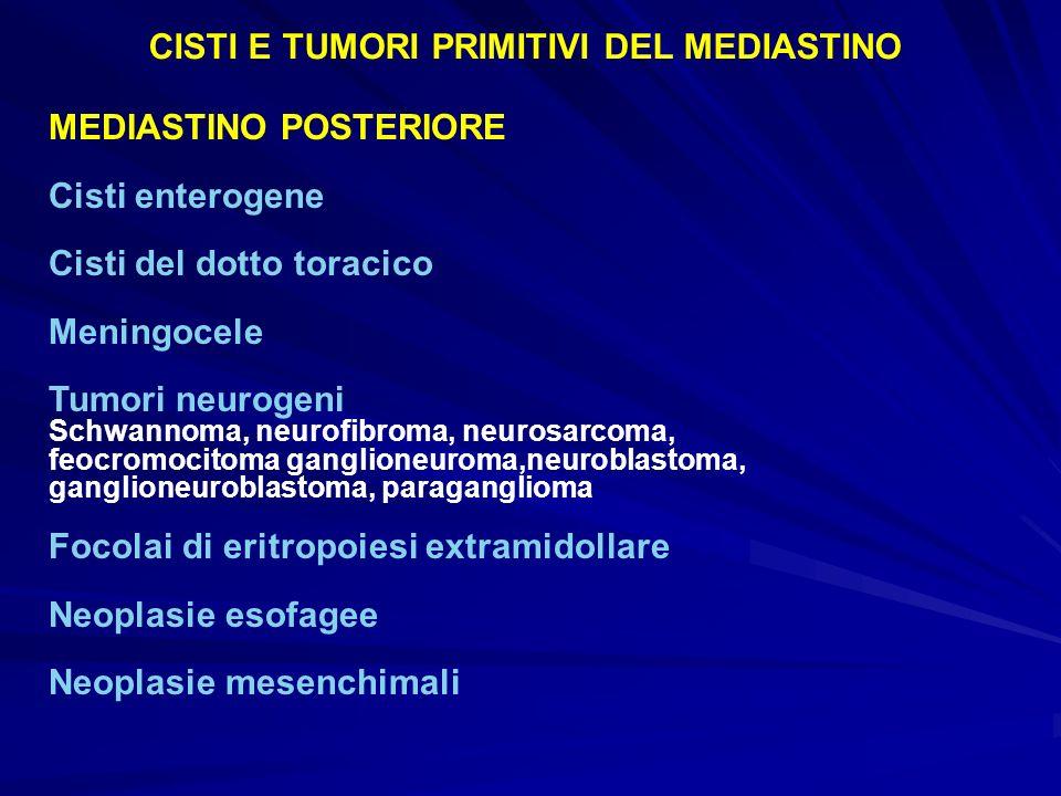 MEDIASTINO POSTERIORE Cisti enterogene Cisti del dotto toracico Meningocele Tumori neurogeni Schwannoma, neurofibroma, neurosarcoma, feocromocitoma ga