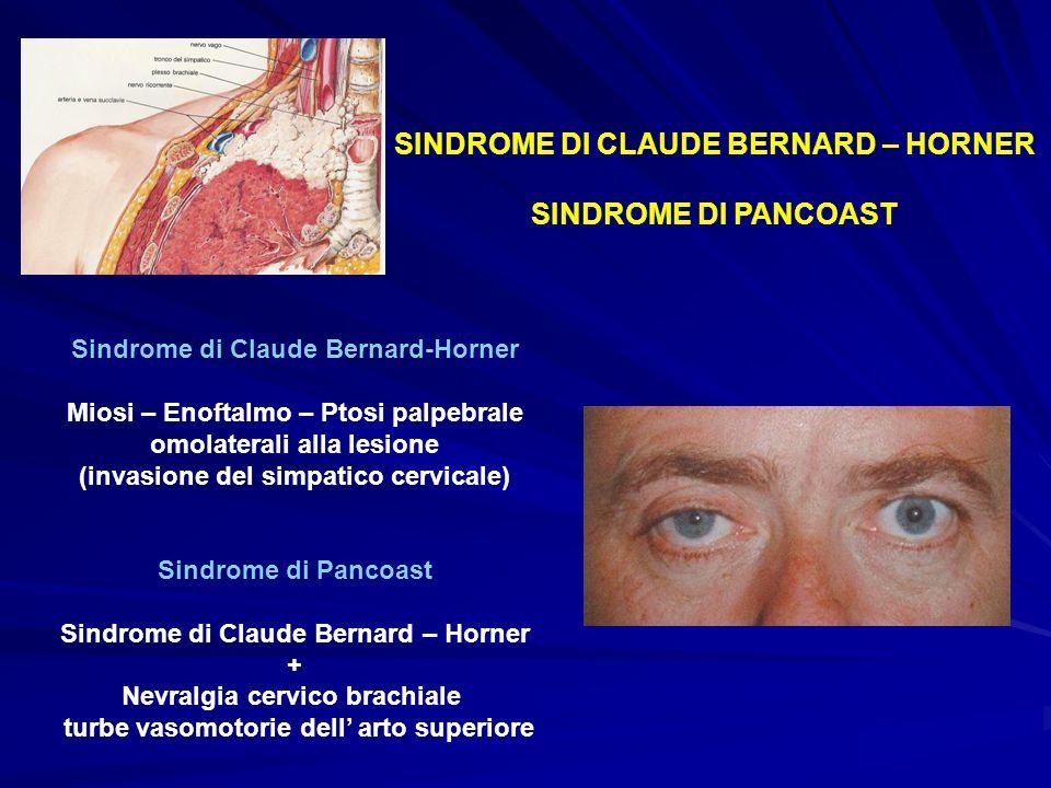 SINDROME DI CLAUDE BERNARD – HORNER SINDROME DI PANCOAST Sindrome di Claude Bernard-Horner Miosi – Enoftalmo – Ptosi palpebrale omolaterali alla lesio