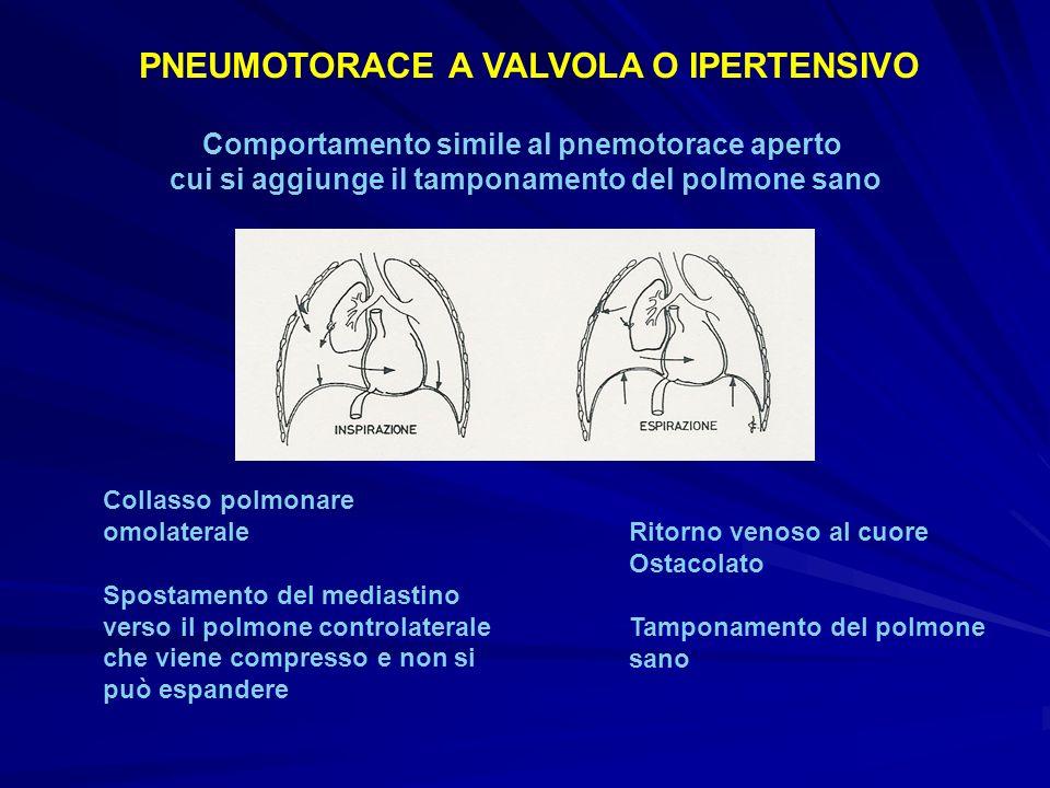 PNEUMOTORACE A VALVOLA O IPERTENSIVO Comportamento simile al pnemotorace aperto cui si aggiunge il tamponamento del polmone sano Collasso polmonare om