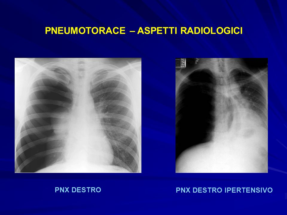 PNEUMOTORACE – ASPETTI RADIOLOGICI PNX DESTRO PNX DESTRO IPERTENSIVO