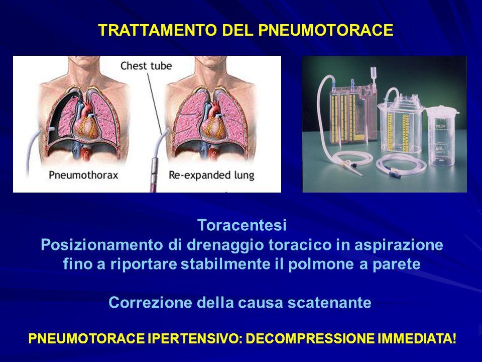 TRATTAMENTO DEL PNEUMOTORACE Toracentesi Posizionamento di drenaggio toracico in aspirazione fino a riportare stabilmente il polmone a parete Correzio