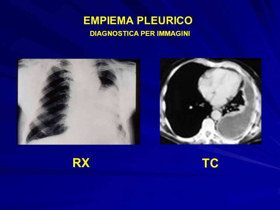 EMPIEMA PLEURICO RX TC DIAGNOSTICA PER IMMAGINI